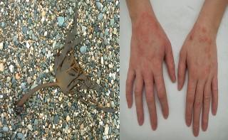 청정환경에서 자라는 해조류 감태(왼쪽)과 아토피성 피부염 환자의 손 - 위키피디아, James Heilman(W) 제공